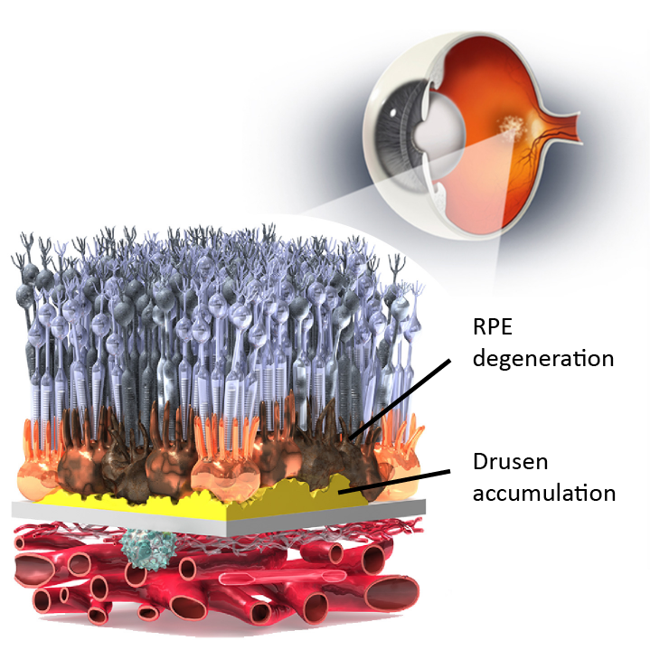 Dry AMD RPE degeneration and drusen accumulation